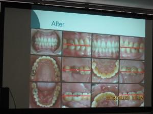 歯科衛生士会  2.23.3
